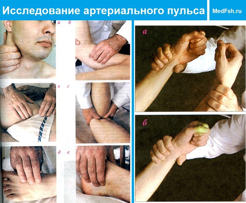 Исследование артериального пульса