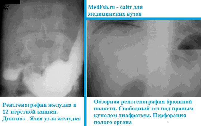 Обзорная рентгенография брюшной полости