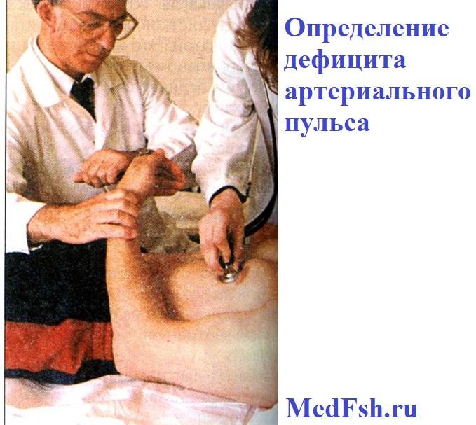 Определение дефицита артериального пульса