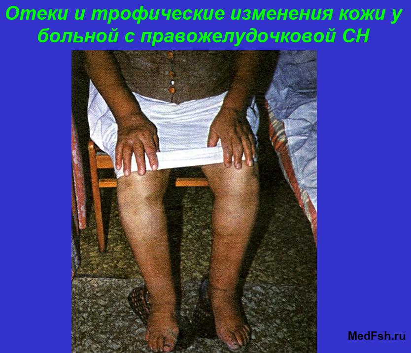 Отеки кожи у больной с сердечной недостаточностью