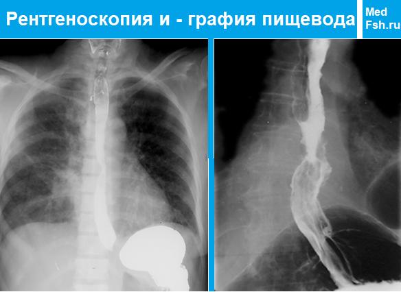 Рентгеноскопия и - графия пищевода